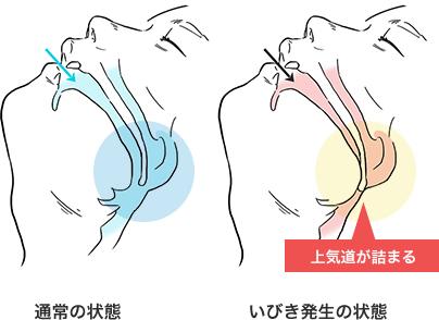 上気道が詰まる 通常の状態 いびき・無呼吸発生の状態