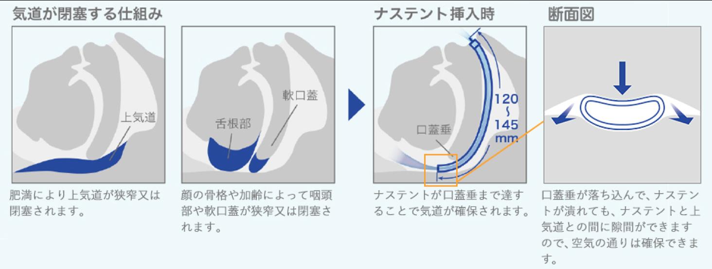いびきの治し方の断面図